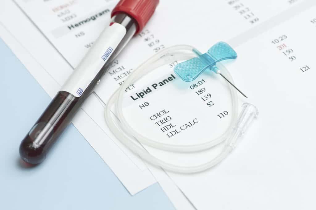 تست کلسترول خون و اندازه گیری سطح کلسترول