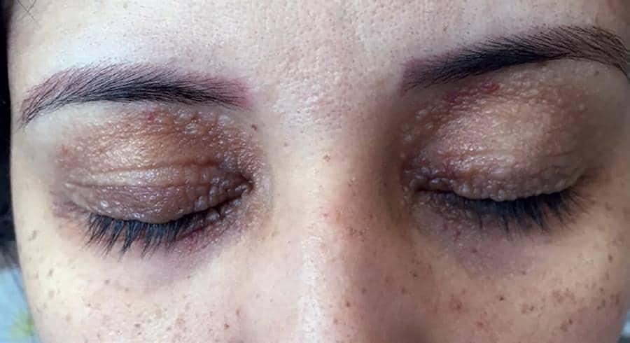 علائم ابتلا به بیماری آمیلوئیدوز