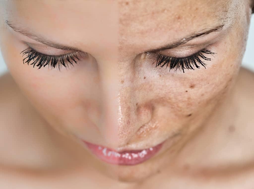 یازده گام برای داشتن یک پوست بهتر