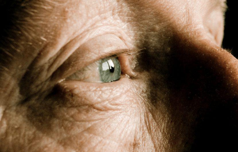 بیماری آب سیاه چشم یا گلوکوم