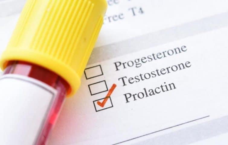 تست پرولاکتین (PRL) به چه منظور انجام میشود و پرولاکتین بالا چگونه درمان میشود؟