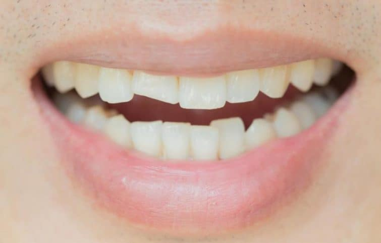 دندان ترک خورده چگونه تشخیص داده شده و ترمیم میشود؟