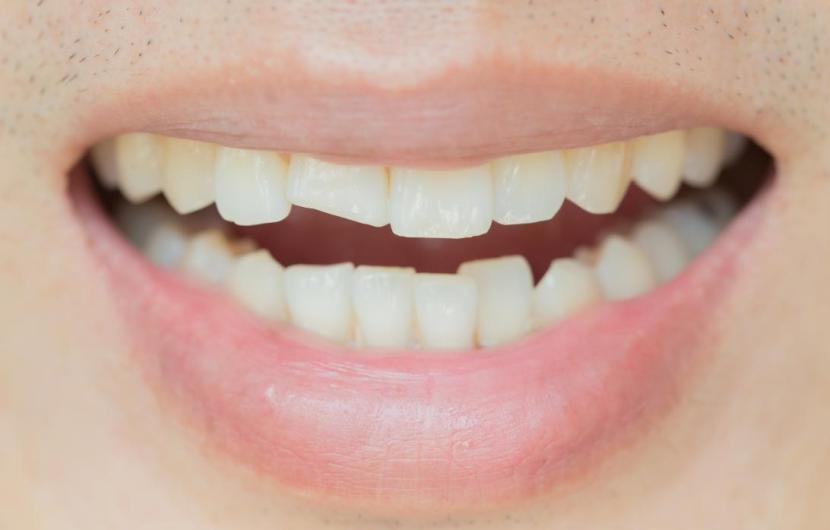 دندان ترک خورده