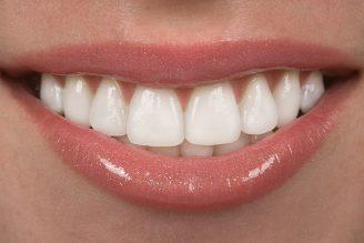 راز داشتن یک لبخند زیبا و جذاب در این چند کار ساده است
