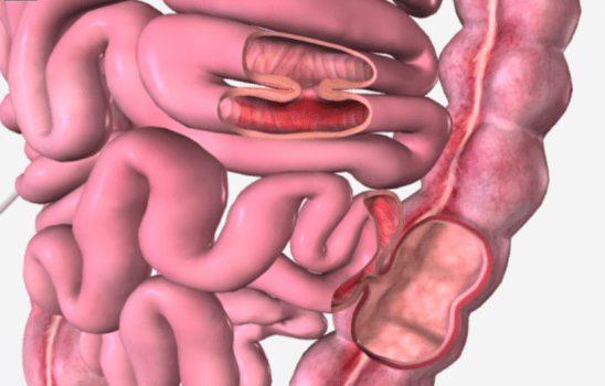 فیستول گوارشی ؛ تعریف، علتها، علائم و انواع روشهای درمانی جراحی و غیر جراحی