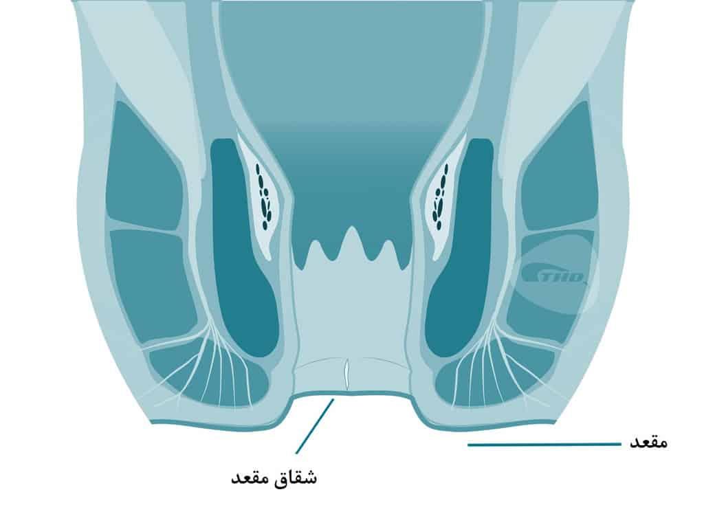 شقاق مقعد، یک بریدگی یا پارگی کوچک در امتداد سوراخ مقعد است.