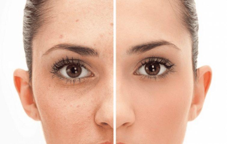 زخم جوش و ۱۶ راه موثر برای از بین بردن این عارضه پوستی