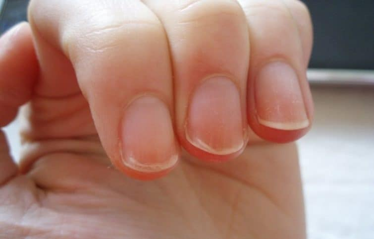 لایه لایه شدن ناخن به چه علت رخ میدهد و چگونه درمان میشود؟