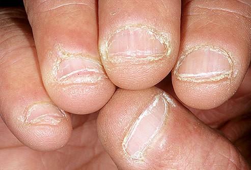 لکههای ناخن چرا به وجود میآیند؟
