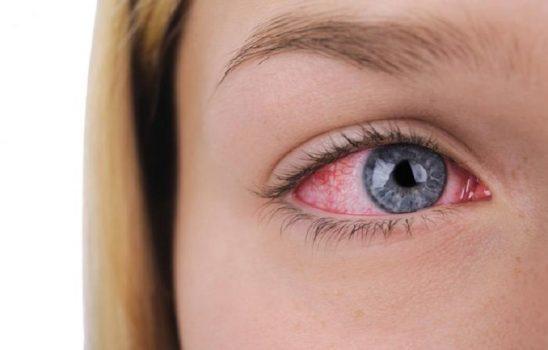درمان خشکی چشم با انواع ویتامینهای مناسب چشم و درمانهای خانگی موثر