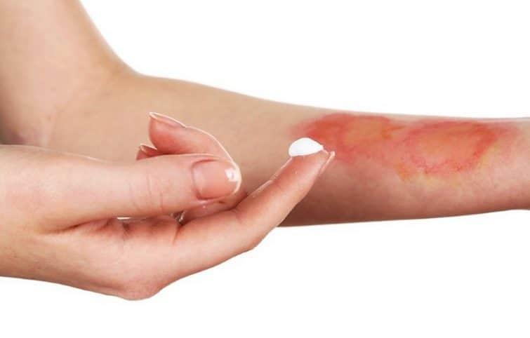 درمان سوختگی با ۱۱ درمان طبیعی و شگفت انگیز که واقعا موثر هستند