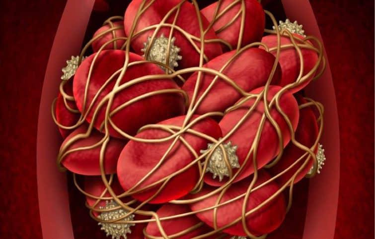 علائم لخته خون با ۶ علامت هشدار دهنده و روشهای تشخیص امبولی ریوی