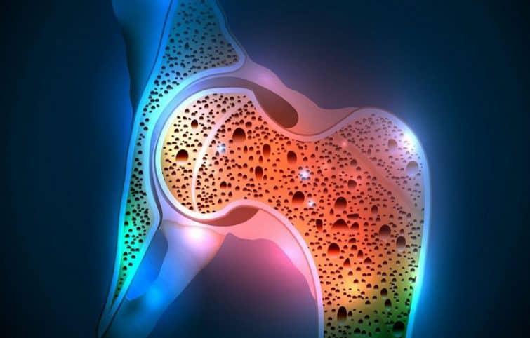 علائم پوکی استخوان با ۶ علامت پنهان که به شما اخطار میدهند