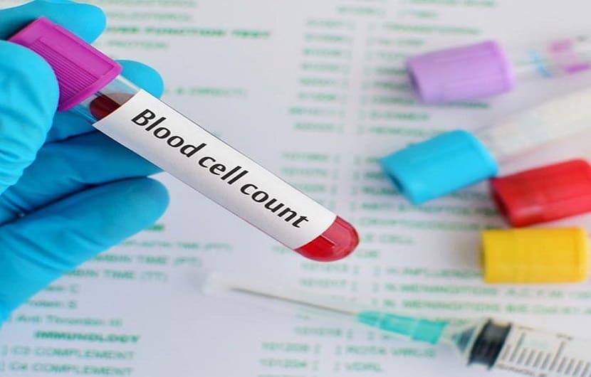 تست RBC آزمایش خون ؛ نتایج نرمال و درمان بالا یا پایین بودن آن