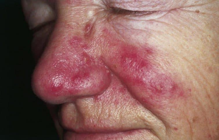 قرمزی بینی به چه علت رخ میدهد و چگونه رفع میشود؟