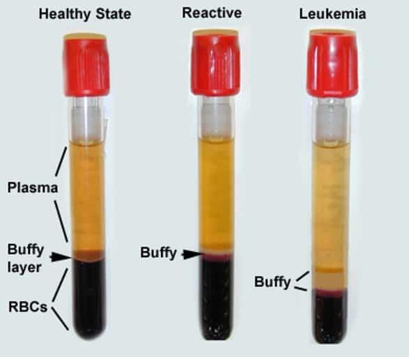 تست RBC آزمایش خون