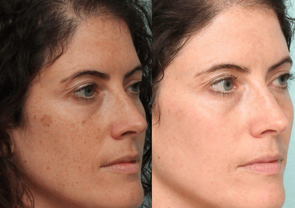 چطور میتوان لکههای تیره روی پوست را از بین برد؟