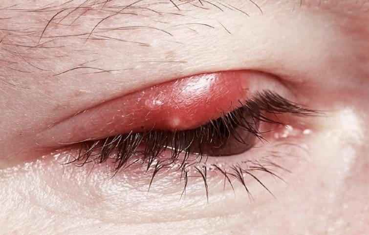 گل مژه چشم و بررسی ویژگی های مختلف این عارضه چشمی