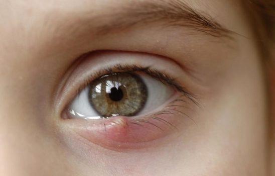 گل مژه چشم و ۱۰ مورد از بهترین درمان های خانگی برای آن