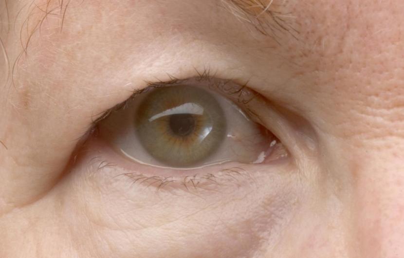 افتادگی پلک یا پتوز به چه علت رخ میدهد، درمان آن چگونه است؟