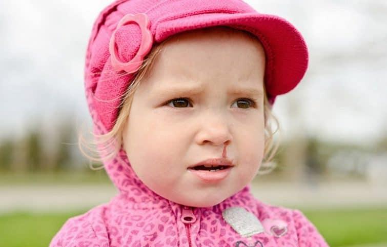 علت خونریزی بینی و انواع روشهای درمان خانگی و پزشکی آن چیست؟