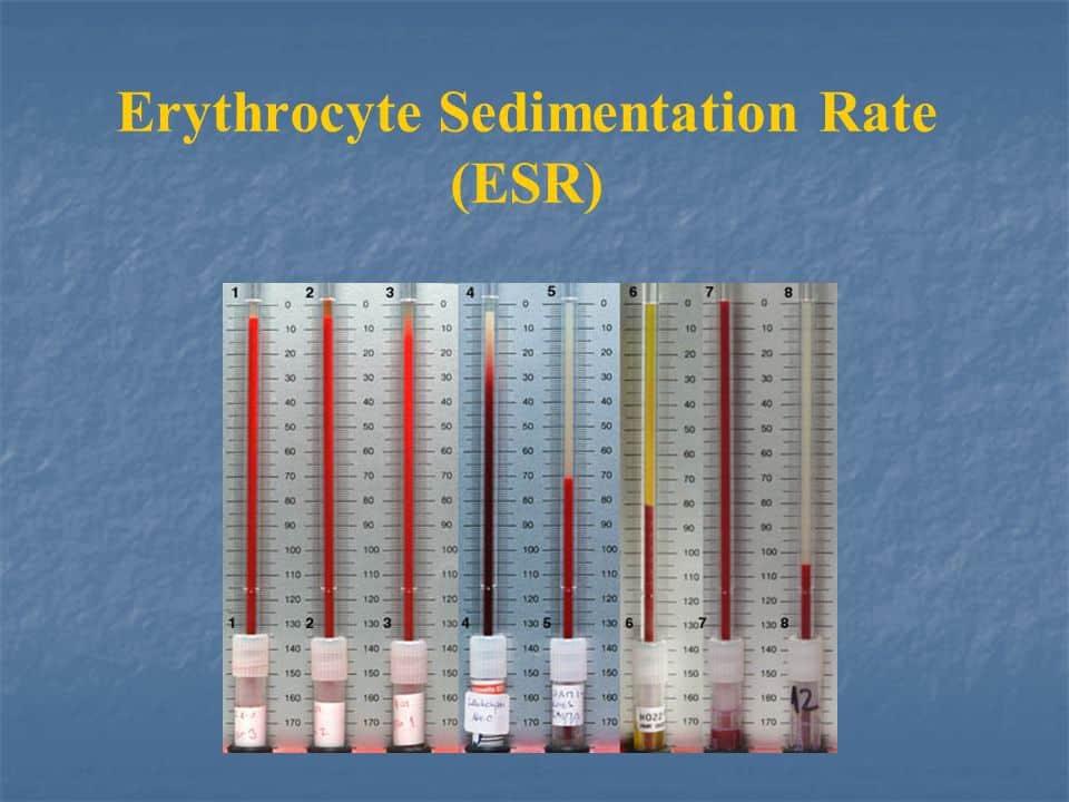 تست ESR آزمایش خون