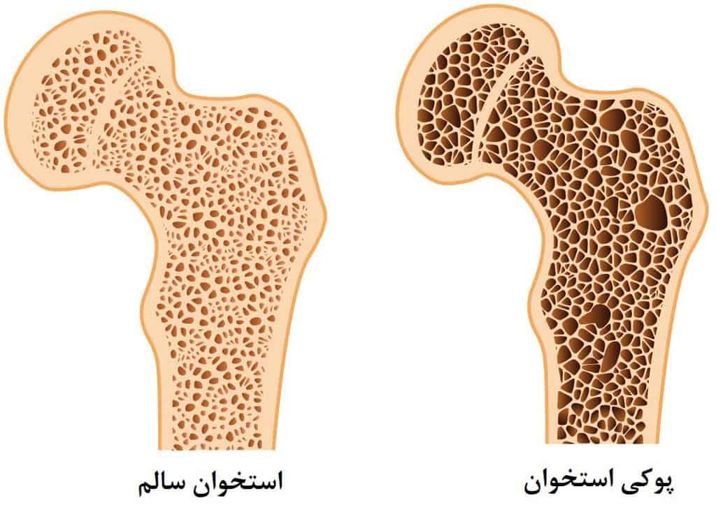 قرص یا کپسول فوزاماکس یا فوساماکس یا الندرونیت برای درمان پوکی استخوان