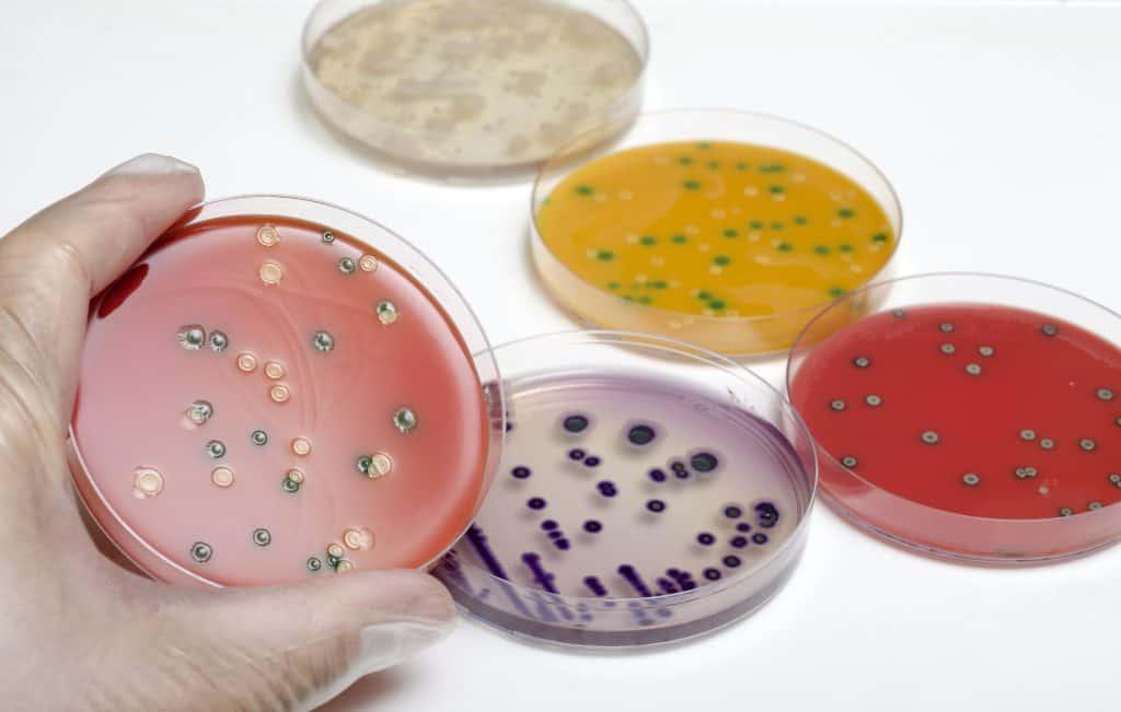 کشت باکتری لیستریا