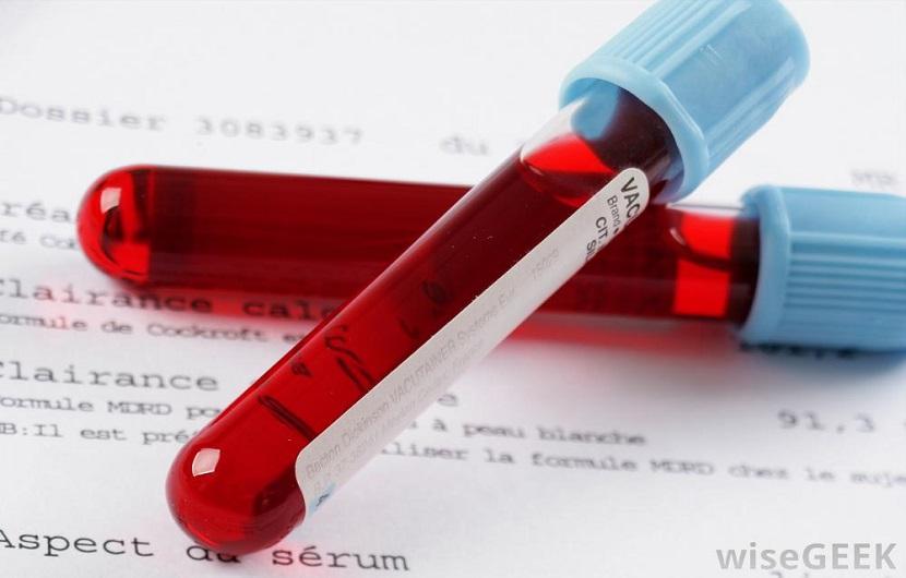 تست MPV آزمایش خون؛ نتایج نرمال و معنی بالا یا پایین بودن آن چیست؟