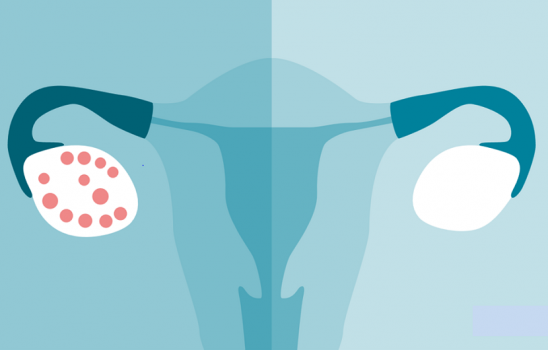 سندرم تخمدان پلی کیستیک (PCOS)؛ علتها، علائم و درمان