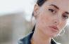 دو روش جدید که در درمان آکنهها بسیار موثر هستند