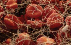 افزایش تعداد گلبولهای قرمز