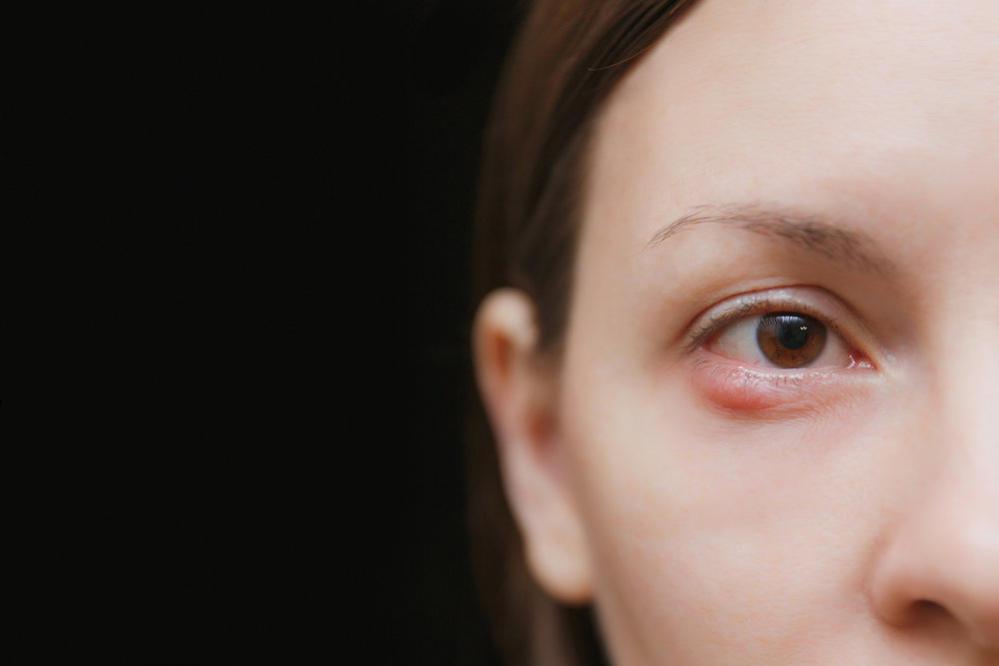 درد چشم