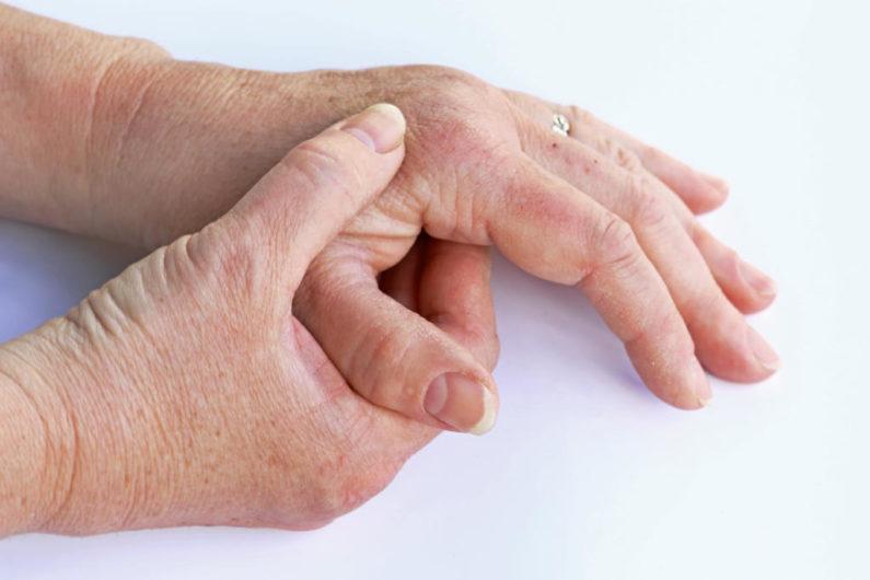 بیماری آرتریت پسوریاتیک