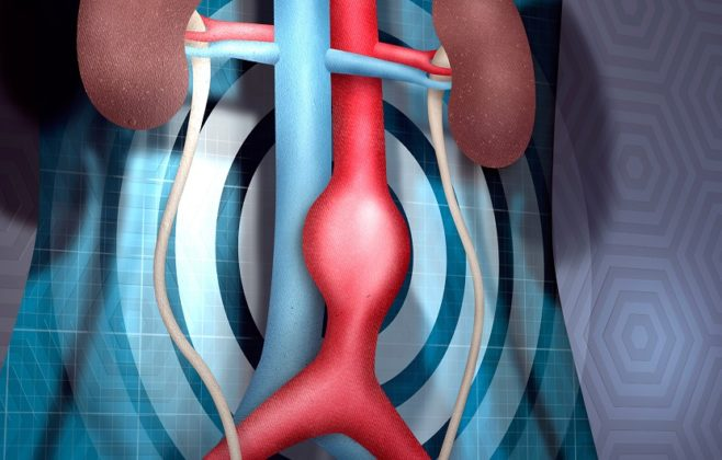آنوریسم آئورت شکمی ؛ علتها، علائم، تشخیص و درمان