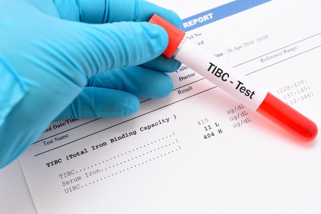 تست TIBC آزمایش خون