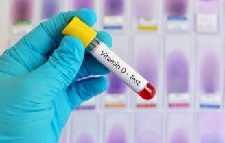 تست ویتامین D آزمایش خون