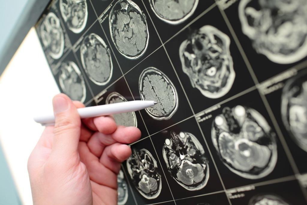 تومور در مغز
