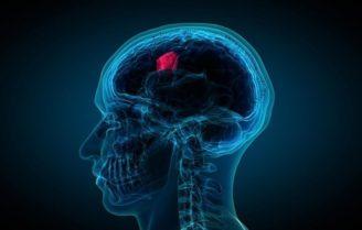 عارضه تومور در مغز
