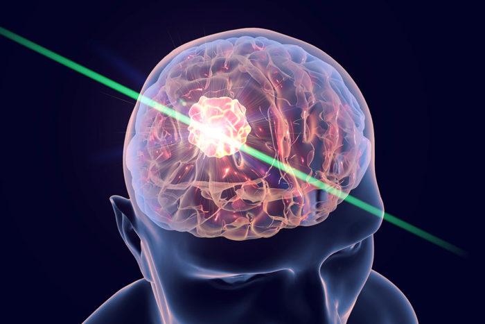 درمان تومور در مغز
