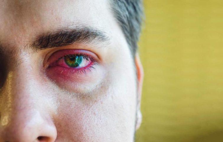 درد و التهاب پلک چه عللی دارد، چگونه میتوان با آن مقابله کرد؟