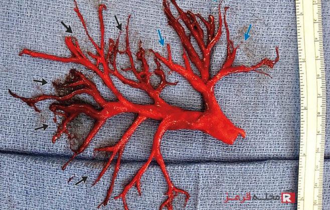 کنترل و درمان لخته خون با انواع روشهای طبی و خانگی
