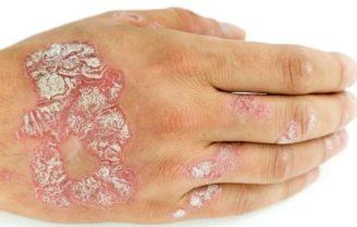 عارضه رنگ پریدگی پوست