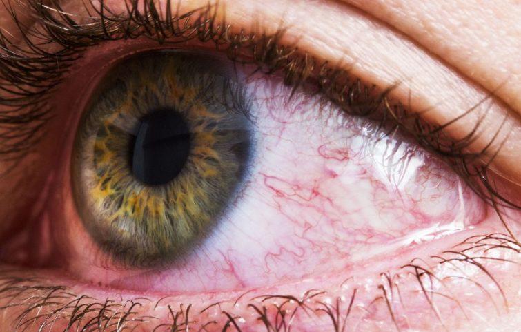 قرمزی چشم چه عللی دارد، چگونه میتوان آن را درمان و پیشگیری کرد