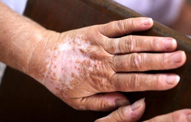 بیماری برص و نگاهی جامع به عوامل ابتلا و روش های درمانی آن