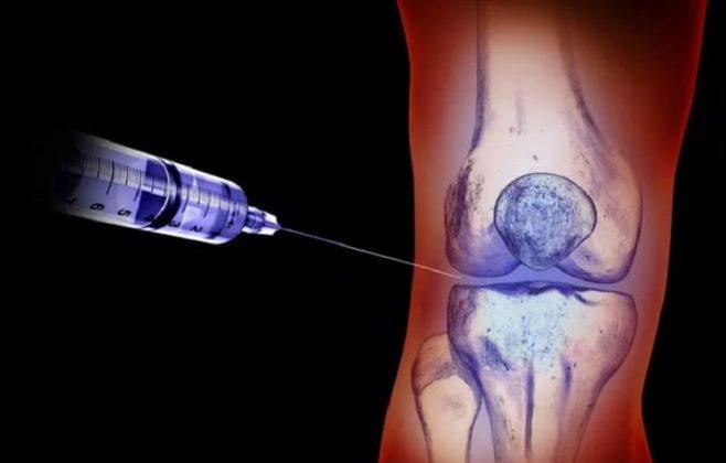 داروی ارتوویسک درمانی کارا برای غلبه بر بیماری آرتروز