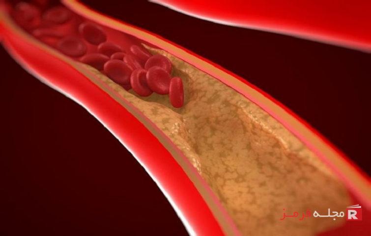 پاکسازی عروق خون را با این غذاها ممکن سازید