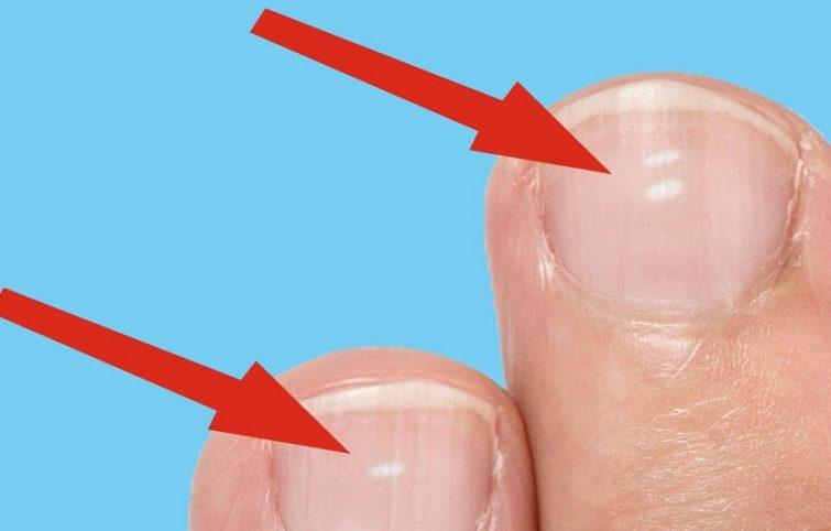 علل لکههای سفید روی ناخن (لکونشی) و روشهای رفع آن چیست؟