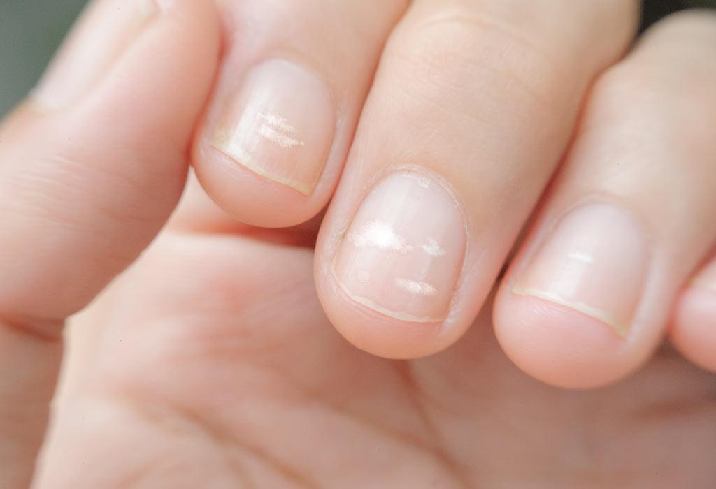 لکههای سفید روی ناخن