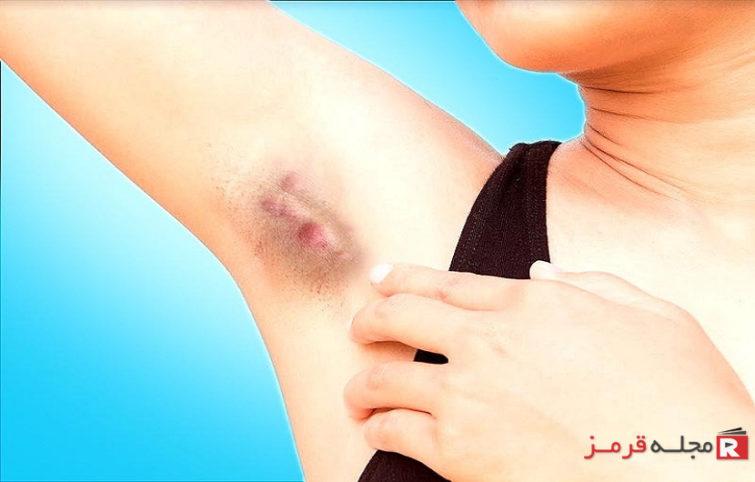 درد زیربغل چه عللی دارد، چه موقع جدی است و چگونه درمان میشود؟